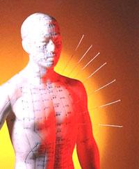 tcm acupuncture case studies