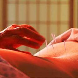 acupuncture_back_pain
